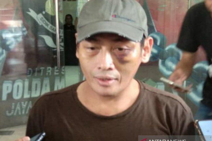 Relawan Jokowi Ninoy Karundeng beberkan detik-detik penculikan dan penyiksaannya