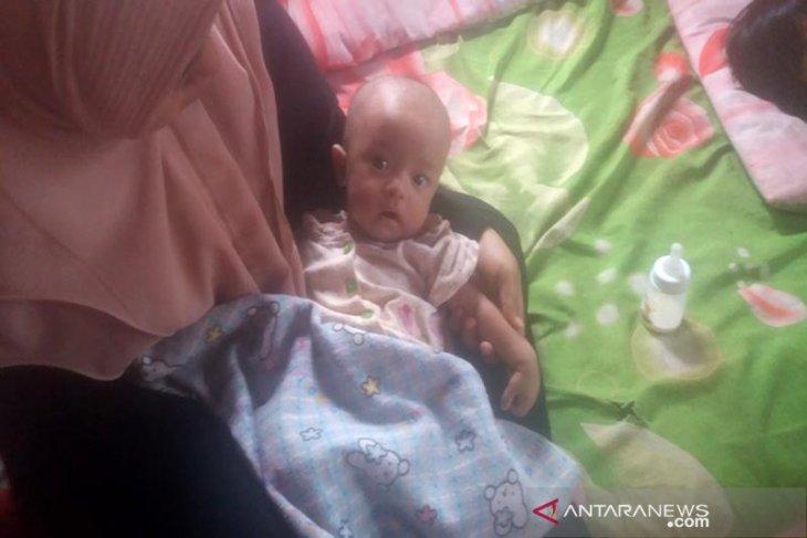 Bayi bocor jantung di Aceh Utara butuh uluran tangan dermawan