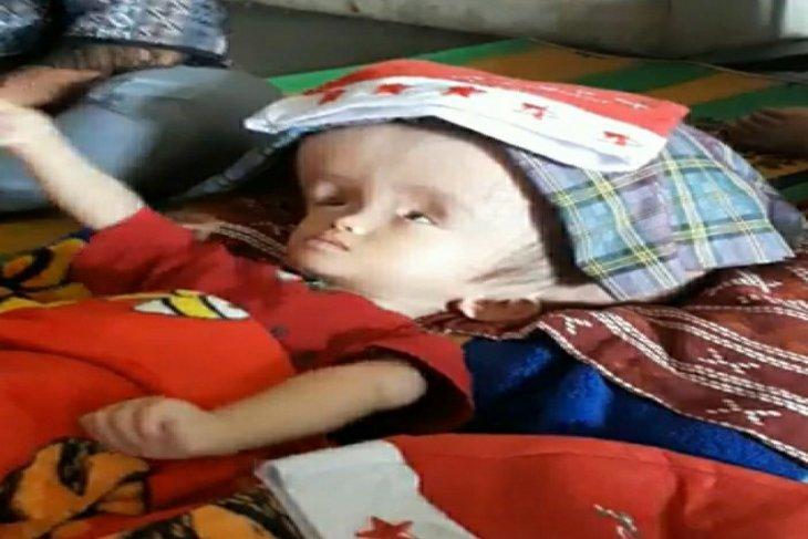 IASTA serahkan donasi biaya pengobatan Gabriel Tampubolon, bayi penderita hidrocephalus