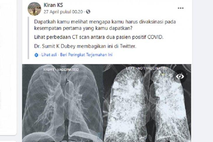 Hoaks gambar paru paru