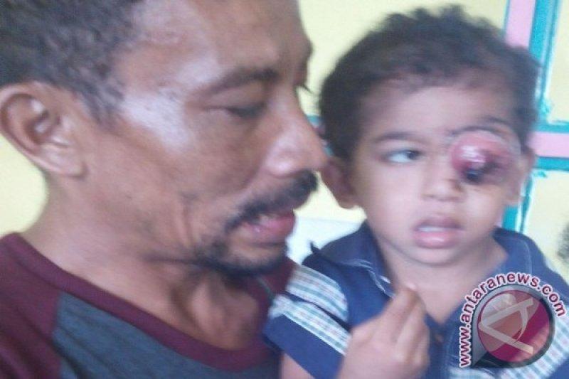 Alif balita penderita tumor di Serang butuh bantuan