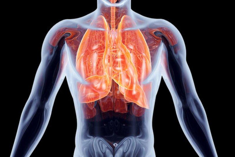 Batuk yang bisa jadi pertanda kanker paru