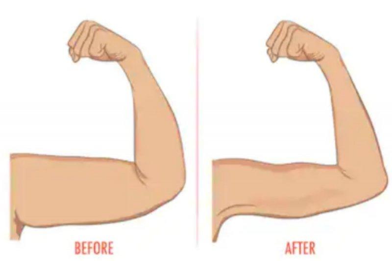Berikut tips agar otot lengan tidak menggelambir