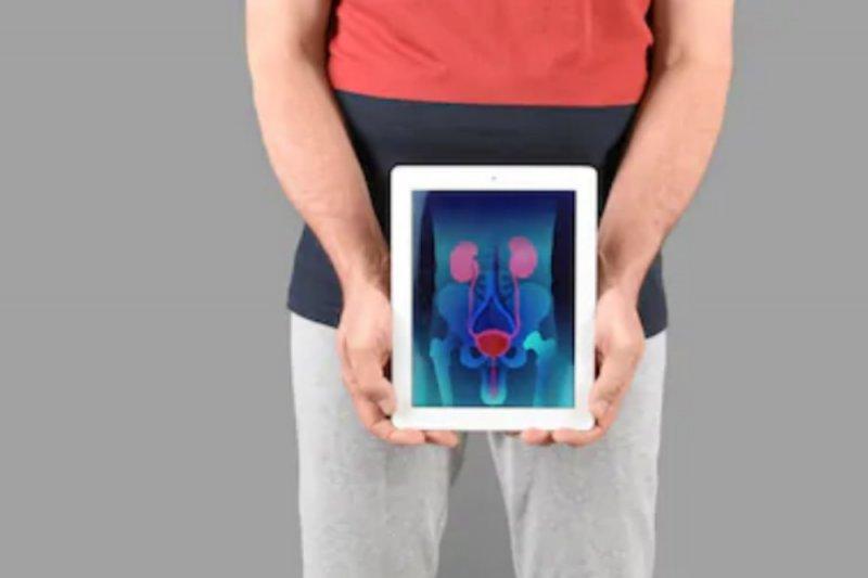Pascaoperasi prostat, apakah boleh langsung berhubungan intim?