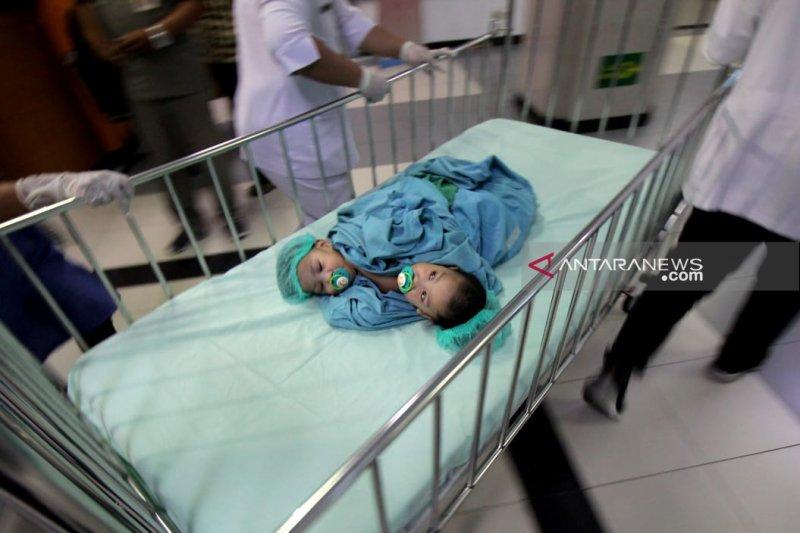Kembar siam Aqila & Azila jalani operasi pemisahan
