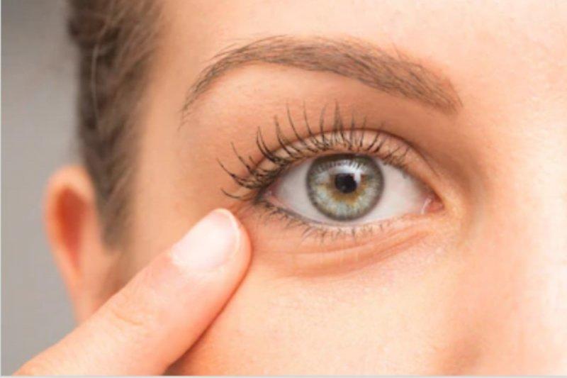 Mata kering? Ini gejala dan cara atasinya