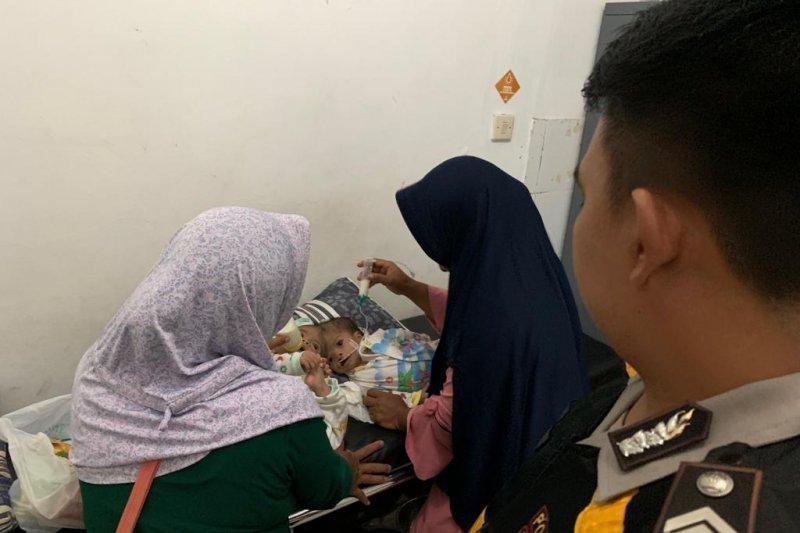 Bayi kembar siam mendapat perawatan intensif di RSUD Cianjur