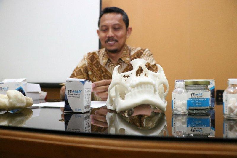 Dosen UNS temukan materi pengganti tulang rusak