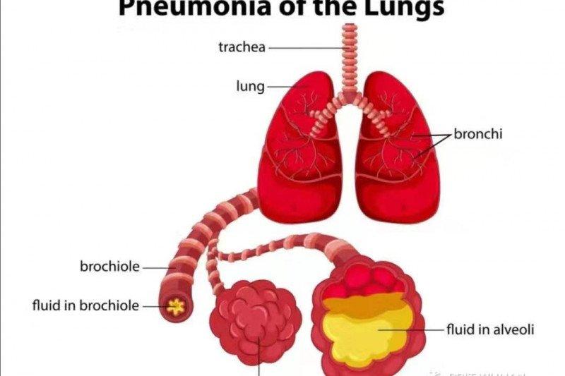 WHO: Wabah pneumonia China tidak menyebar