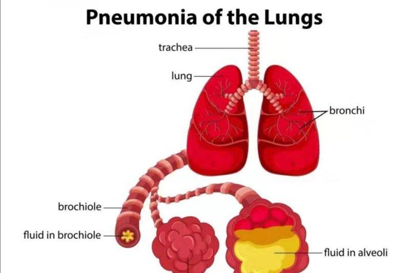 Di China, seorang penderita pneumonia meninggal dan tujuh kritis