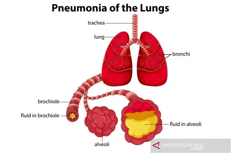 Pneumonia 1