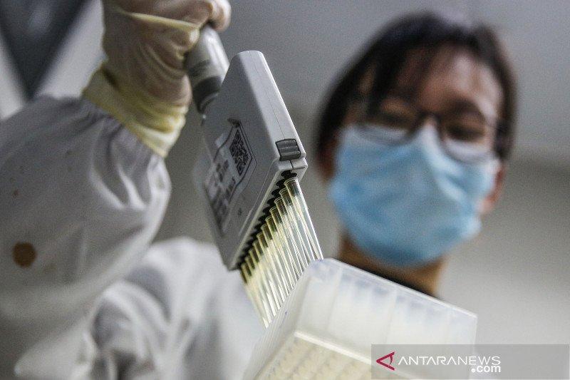 Brazil setujui uji klinis vaksin COVID-19 buatan China