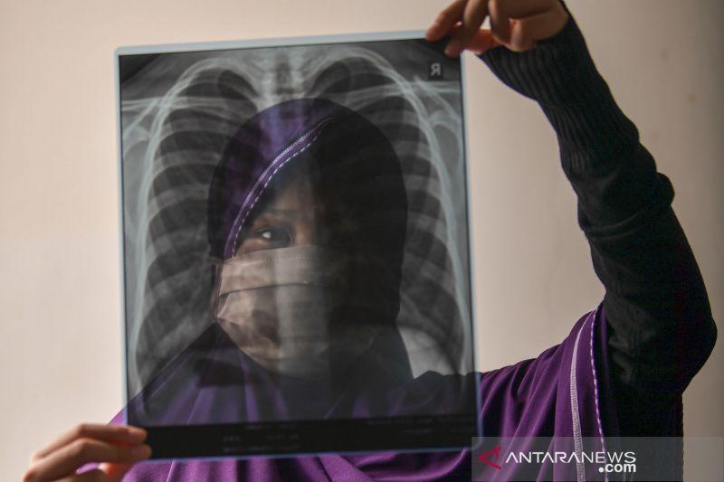 RS Darurat Wisma Atlet rawat 711 pasien positif COVID-19