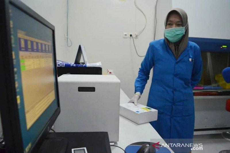Kota Palu miliki alat tes COVID-19, mampu deteksi virus hanya 50 menit