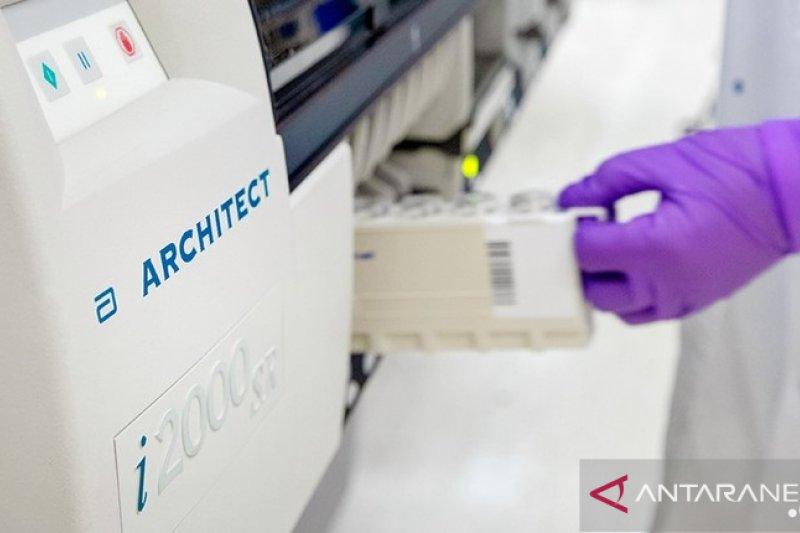 Abbott datangkan alat tes identifikasi untuk antibodi COVID-19