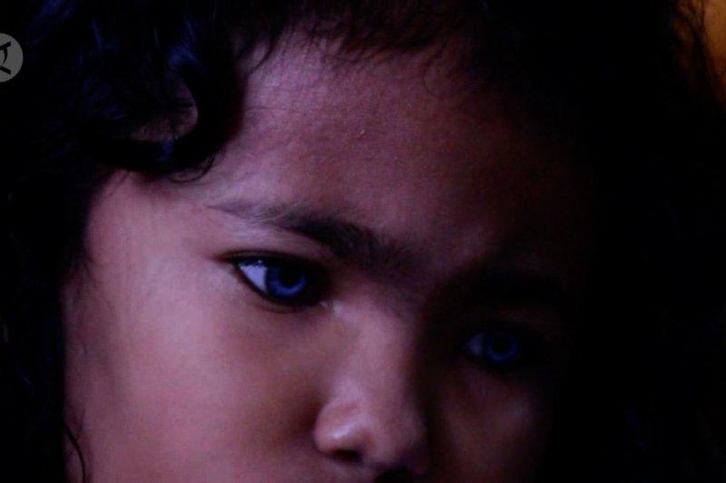 Gadis kecil bermata biru dari Pekanbaru