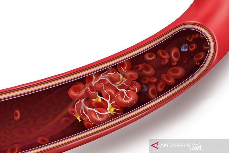 Riset Denmark, Norwegia: sedikit pembekuan darah setelah suntik Astra