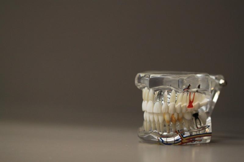 Pola makan hingga penyakit yang sebabkan gigi menjadi sensitif