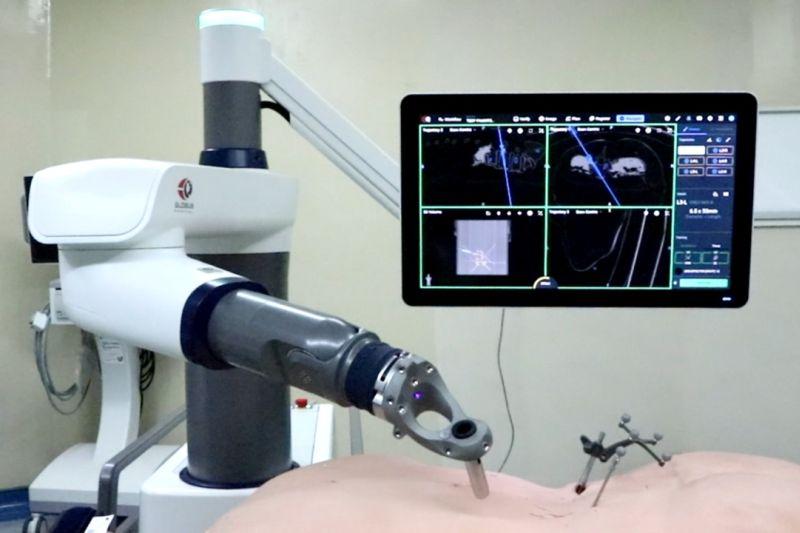 Eka hospital hadirkan robot navigasi pertama obati skoliosis