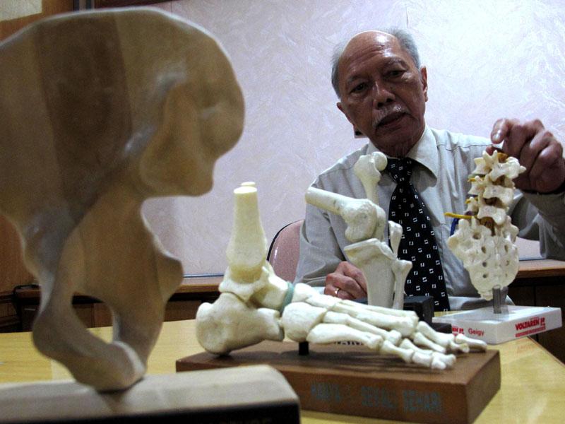 Pria muda pun bisa kena osteoporosis