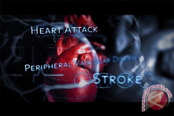 Perempuan modern lebih rentan kena penyakit jantung