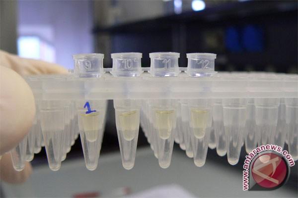 Indonesia kembangkan penangkal bakteri resisten antibiotik