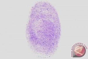 Sidik jari bisa tunjukkan perlihatkan jenis kelamin seseorang