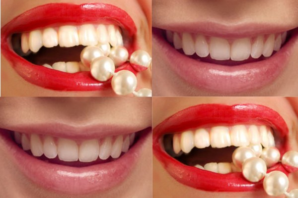 Cerita dibalik deretan gigi