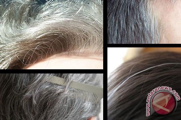 Cara alami atasi rambut beruban