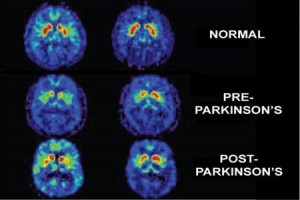 Efek buruk video games action untuk otak