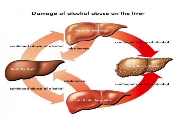 ulcer symptoms zinc poisoning