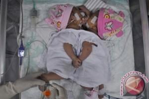 RS Hasan Sadikin rawat bayi kembar siam dempet kepala-perut