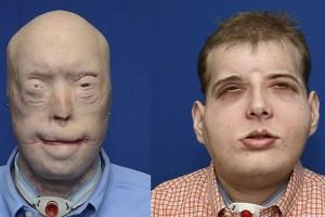 Pemkot Ambon dan Vlissingen gelar operasi bedah plastik