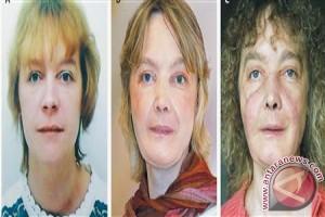 Wanita  penerima transplantasi wajah pertama di dunia meninggal