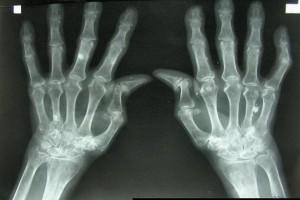 """Hobi """"kretek"""" jari? Awas kena artritis"""