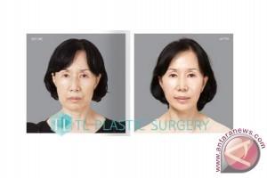 Korea TL Plastic Surgery: Tidak ada yang dapat menandingi prosedur SMAS face lifting