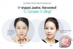 """Dr Jung Yeon Ho's """"TL POWER V Lift Non Surgical Facial Contouring"""" gets the fantastic V line shaped face without bone surgery!"""