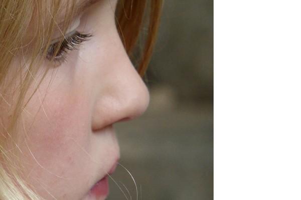 Bentuk hidung dipengaruhi iklim lokal