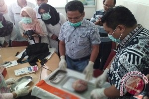 Seorang perempuan Jambi melahirkan bayi membatu