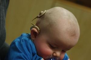 Aplikasi mobile bantu anak lahir tuli belajar bicara