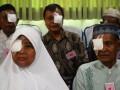 Bakti Sosial Operasi Katarak