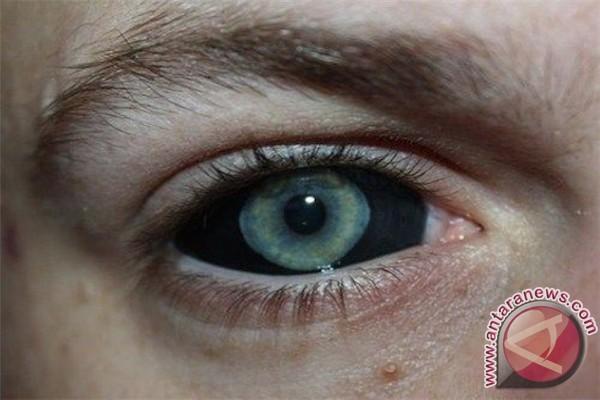 Berniat Menato Bagian Dalam Mata? Jangan Pernah Lakukan