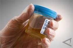 Bahan Bakar Dari Urine